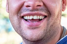 Dental emergency patient